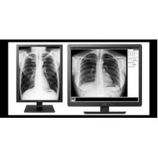 LG monitor diagnostični 21HK512D 3MP